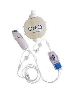 Infusion Pump ON-Q* 400 mL 2-14 mL / Hr.